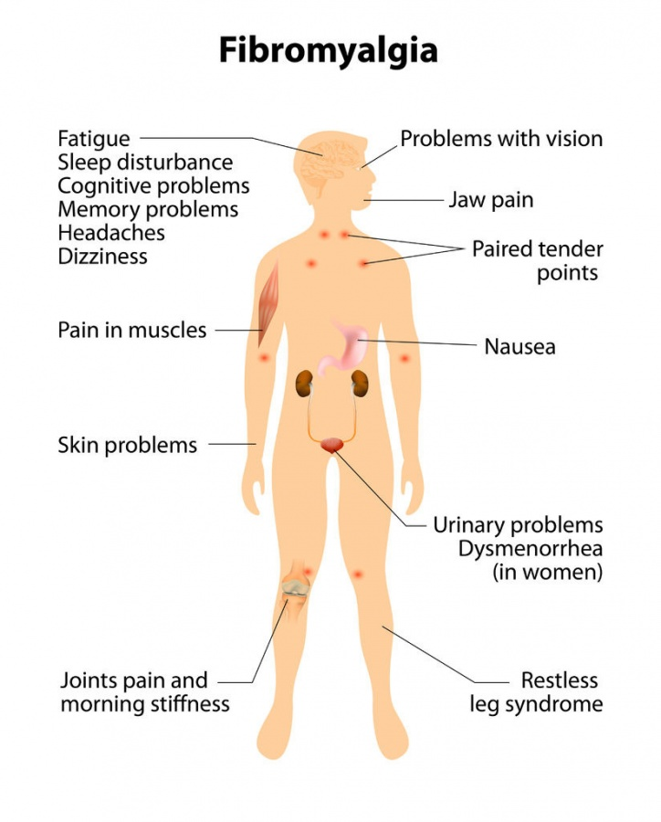 fibromyalgia_symptoms_body39548220_ML